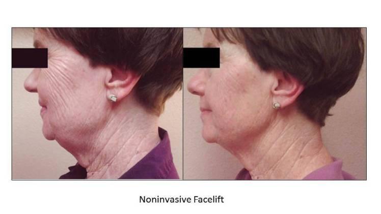 Female Face slide 1